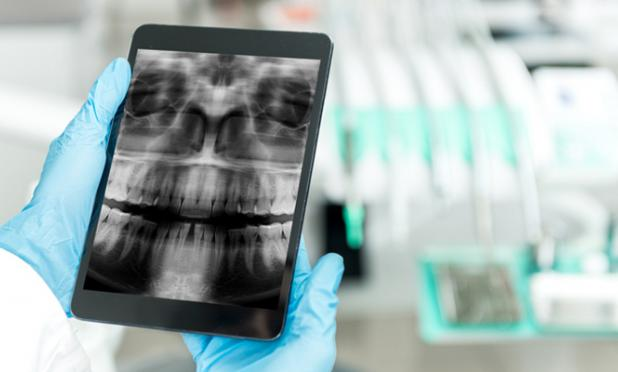 Doctor looking at x-ray on a tablet